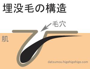 maibotsumou